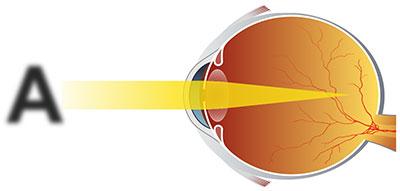Близорукий (миопичный) глаз, лечение направлено на изменение положения фокуса