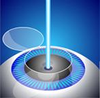 Воздействие лазера в ходе коррекции зрения без проникновения в полость глаза