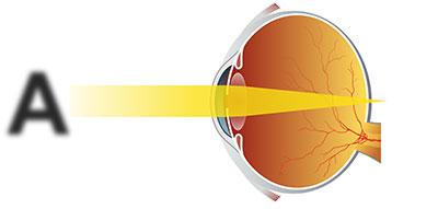 Дальнозоркий (гиперметропичный) глаз, лечение направлено на изменение фокуса