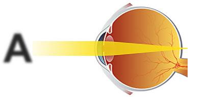 Пресбиопичный глаз (глаз с возрастной дальнозоркостью), лечение направлено на изменение положения фокуса